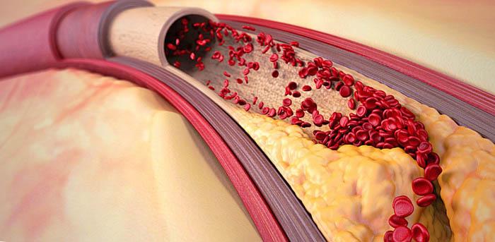 кефирный грибок против атеросклероза